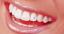 Cyrkonia na ząb