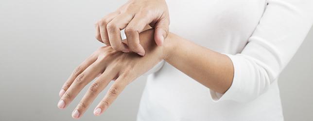Sposób na atopowe zapalenie skóry