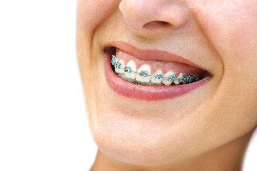 Aparat ortodontystyczny
