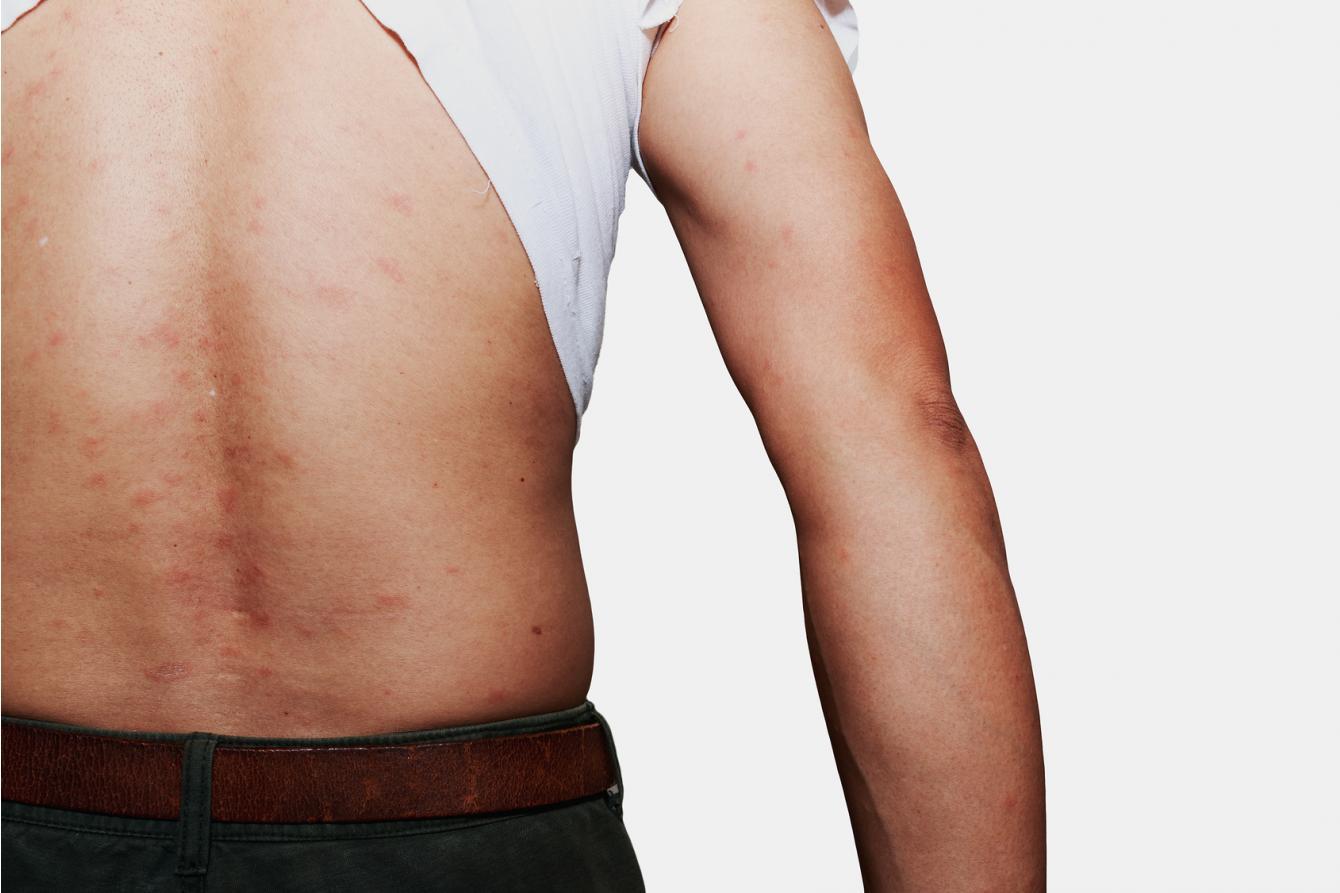Kosmetyki na atopowe zapalenie skóry